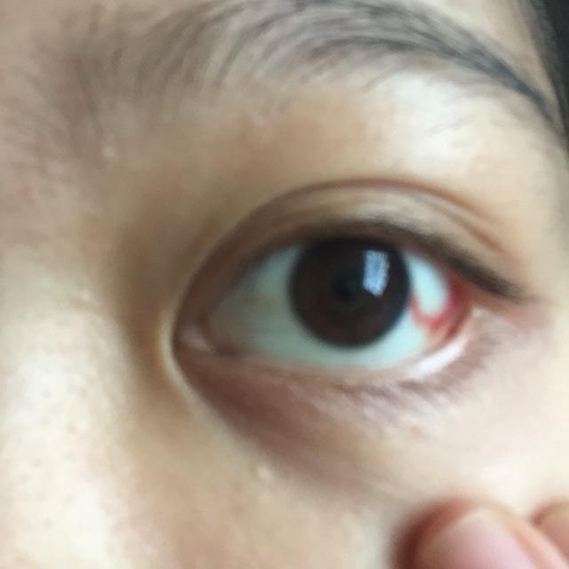 生产用力过猛,眼睛毛细血管破裂 - 2016年10月