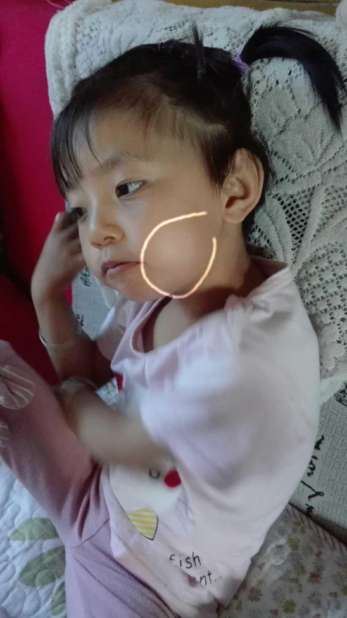 宝宝脸上有白斑,请见过的妈妈进来,附图 - 2013
